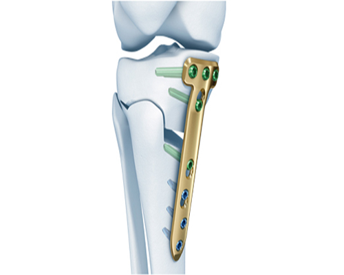 TomoFix Medial High Tibia Plate