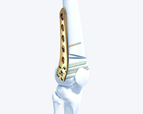 TomoFix Lateral Distal Femur Plate